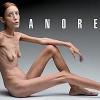 Fuerte fotografía contra la anorexia