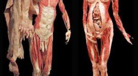 Bodies, exhibición de cadáveres hechos arte