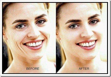 retoque de arrugas en rostro